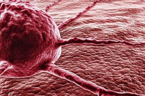 Самый трудноизлечимый: рак поджелудочной железы